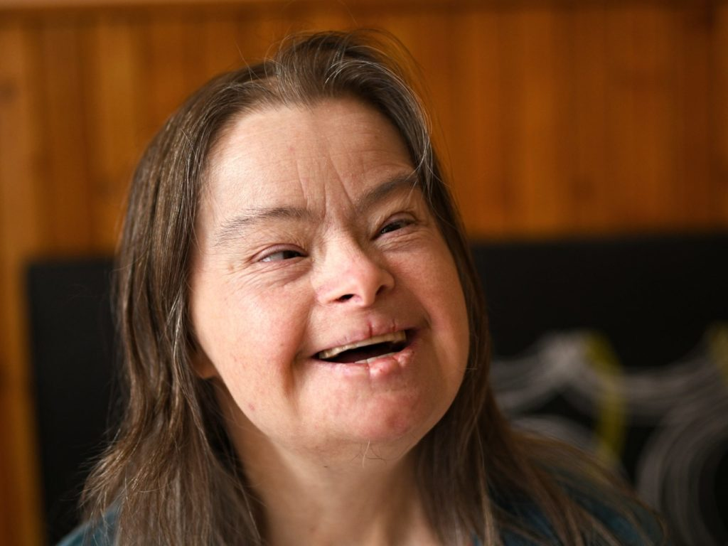 18 best Down Syndrome images on Pinterest | Down syndrome