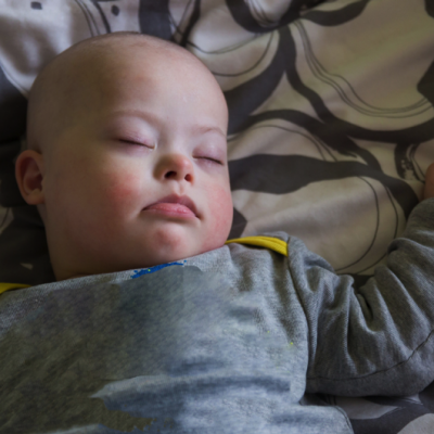 Sleep in children with Down syndrome (0-2 years)